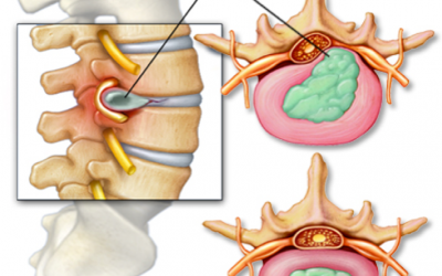 How Do You Treat A Herniated Disc